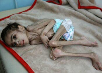 المجاعة تتفوق على الوباء في زمن كورونا