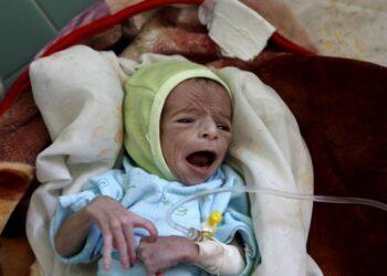 5 وفيات بسبب كورونا مقابل 11 قتيلا في المجاعة كل دقيقة